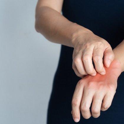 Mani rovinate dall orto